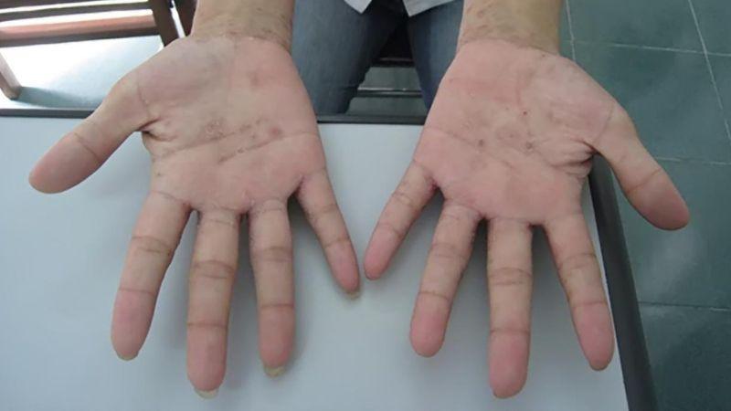 Bị ghẻ nước ở tay
